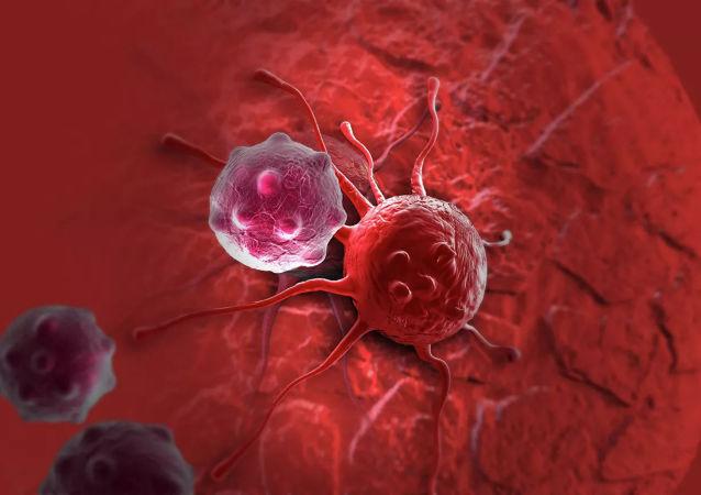 俄科學家找到通過呼氣檢測呼吸道癌症的方法