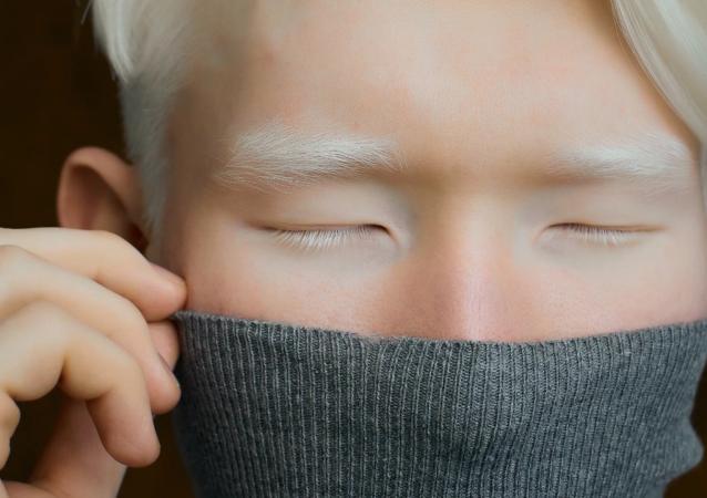 哈薩克斯坦身患白化病的小伙子以不尋常的外表驚倒攝影師