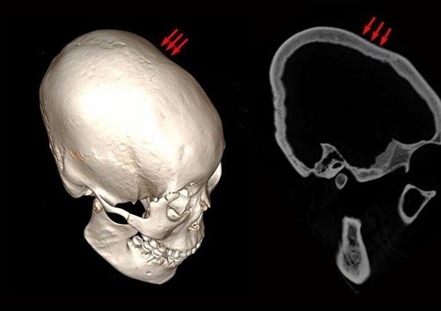 在中國發現了有12000年歷史的變形頭骨