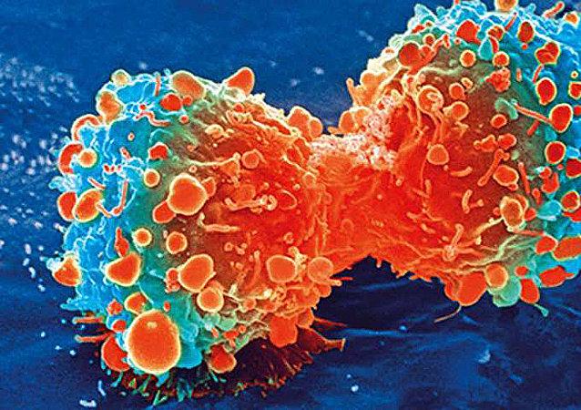 四個習慣可讓人遠離癌症