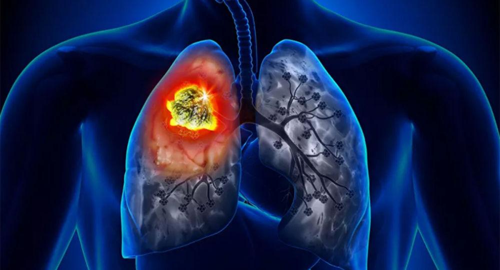 肺癌的首發症狀